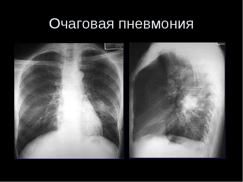 как выглядит туберкулез на снимке