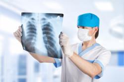 Рентгенография легких при внутриутробной пневмонии