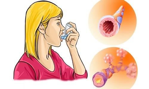 Приступ аллергического бронхита