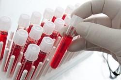 Сдача анализов на выявление аллергена