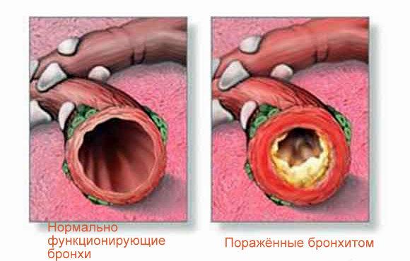 с целью лечения инфекций