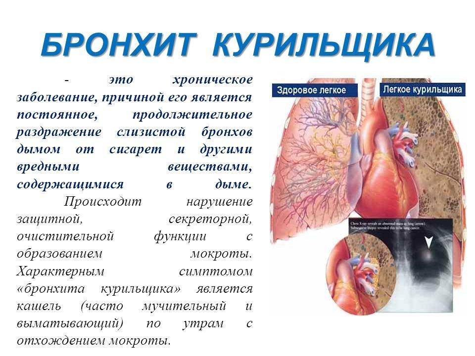 121Как лечить кашель курильщика в домашних