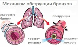 Механизм обструкции легких