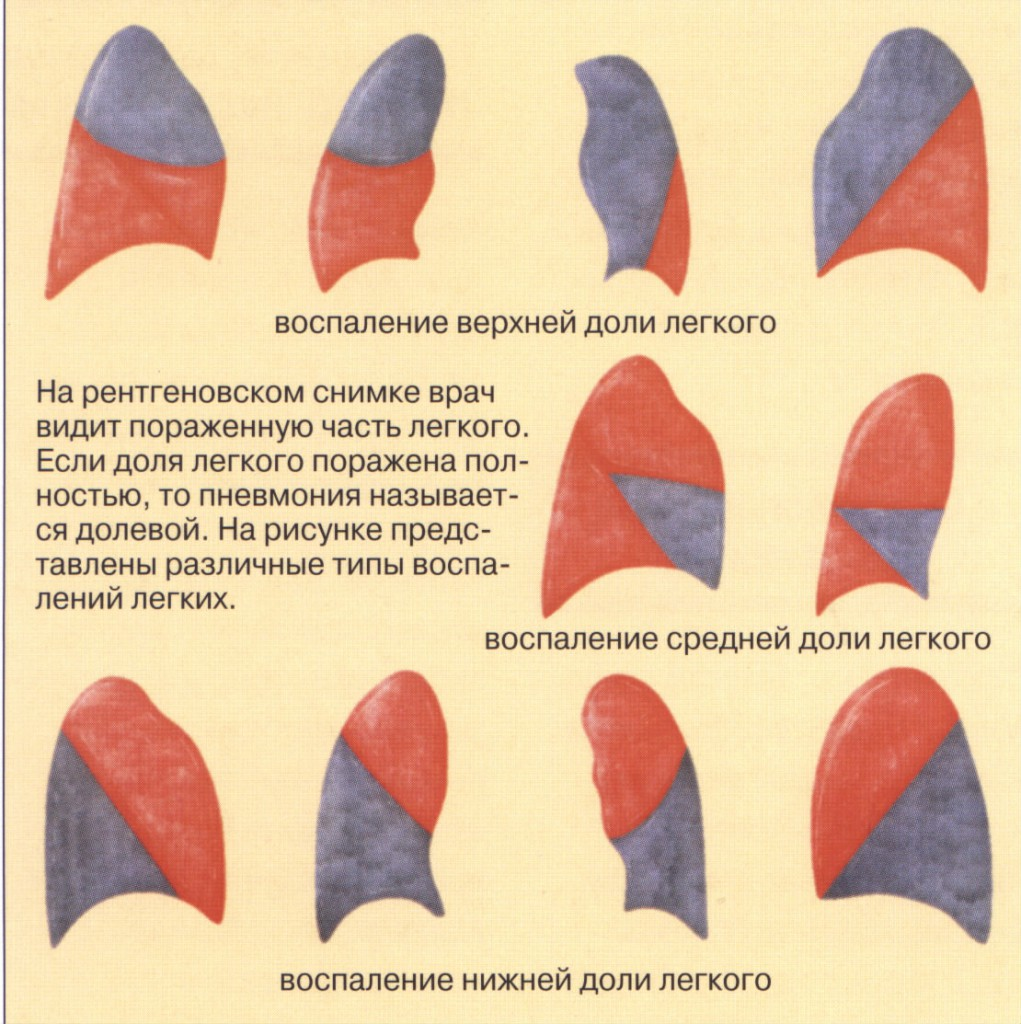 Пневмония народная медицина 3 фотография