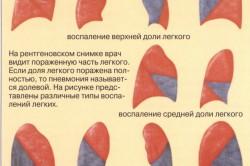 Варианты воспаления легких при пневмонии