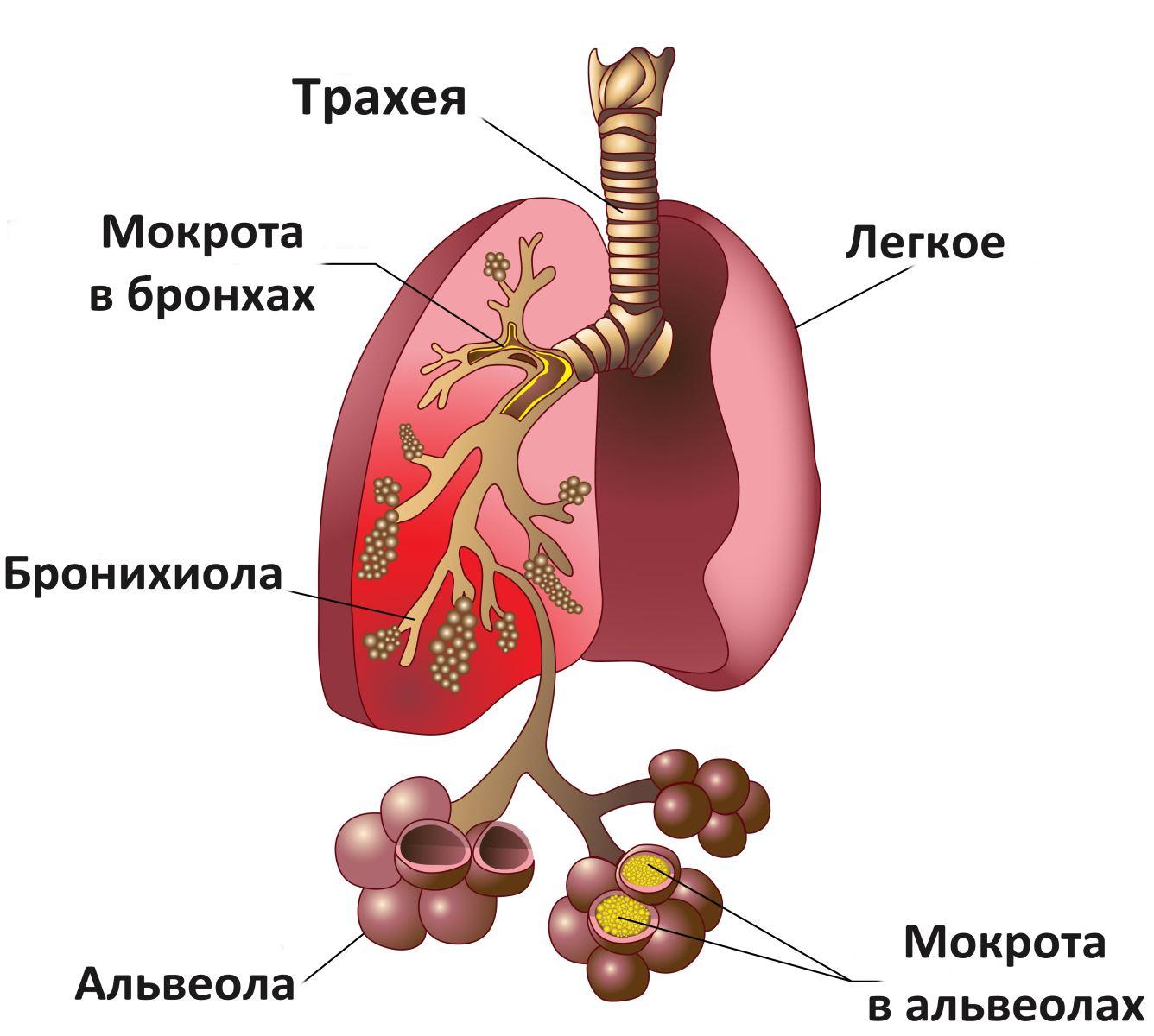 Пневмония народная медицина 2 фотография