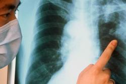 Мокрота с кровью при туберкулезе