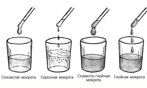 Виды мокроты при кашле