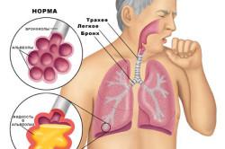 Возникновение мокроты при воспалительных процессах в легких