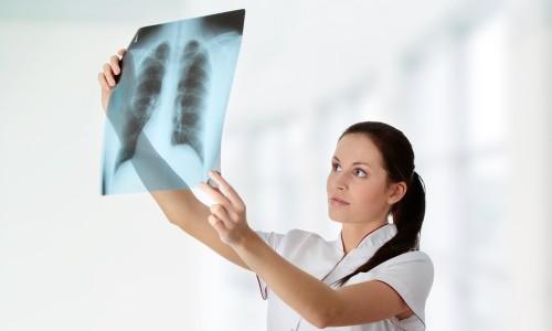 Можно ли делать флюорографию при простуде